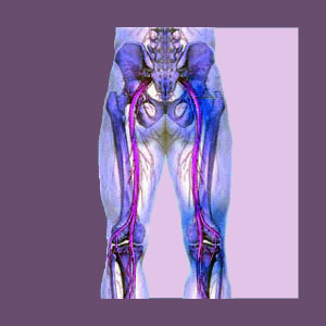 Chiropractic for Piriformis Pain