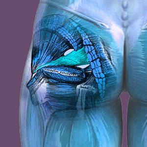 Misdiagnosed piriformis pain