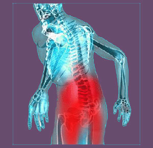 Piriformis buttocks pain