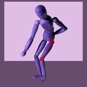 Piriformis Knee Pain