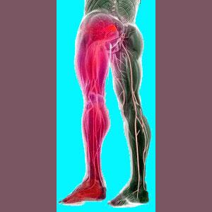 Piriformis leg pain