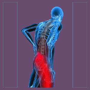 Piriformis pain in athletes