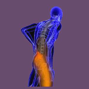 Piriformis Pain Standing