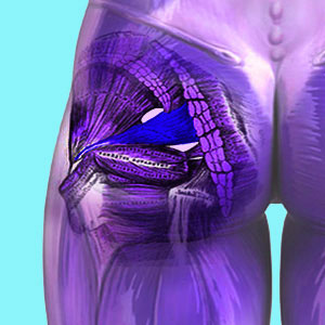 Piriformis Products