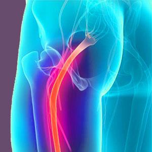 Piriformis syndrome left leg