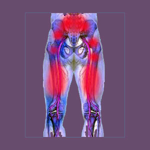 piriformis syndrome test