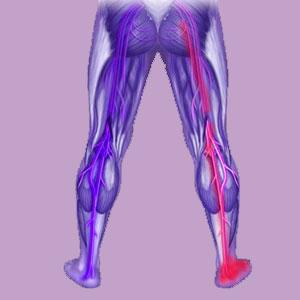 Piriformis Weak Leg