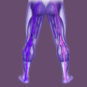 Pronated Foot Piriformis Pain